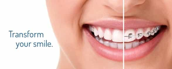 6 Things a Woman should do to her teeth for the beautiful smile!! teeth